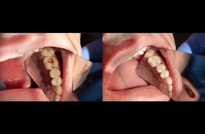 Dental-Caries-Filling