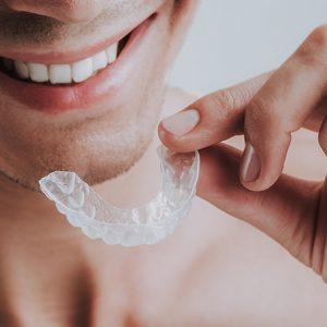 Teeth Whitening in Melbourne
